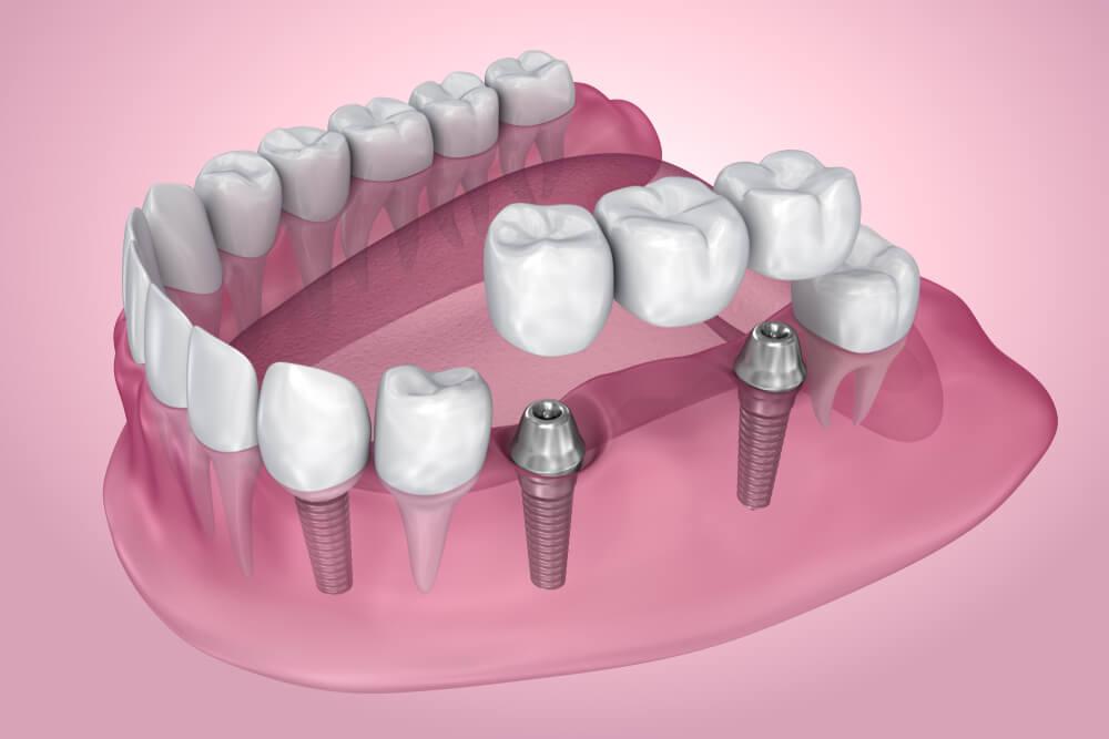 implant iyileştirme başlığı ağızda ne kadar süre durmalı ?